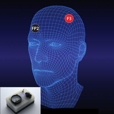 SSD 5.0 ТЕС Мозъчен стимулатор за невротренинг и невро-рехабилитация